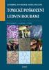 Toxické poškození ledvin houbami, Patogeneze, klinika, léčba
